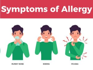 Allergy specialist in Hyderabad