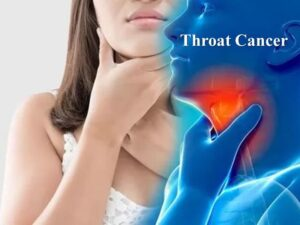 throat cancer treatment in Hyderabad