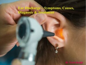 Ear Discharge Treatment