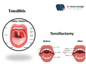 Tonsillectomy surgery cost in Hyderabad