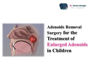 adenoidectomy surgery cost in Hyderabad