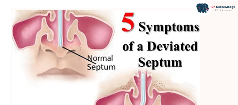 Do You Know These Five Symptoms of a Deviated Septum?