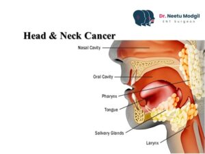 head and neck surgeon in Hyderabad