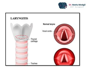 laryngitis treatment