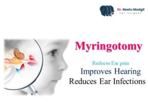 myringoplasty surgery