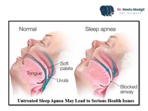 Sleep Apnea test in Hyderabad