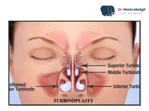 Turbinoplasty