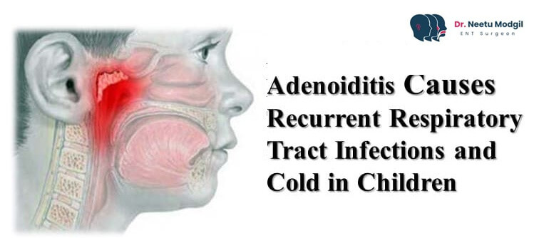 Adenoiditis Causes Recurrent Respiratory Tract Infections and Cold