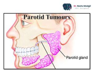 Parotid tumours