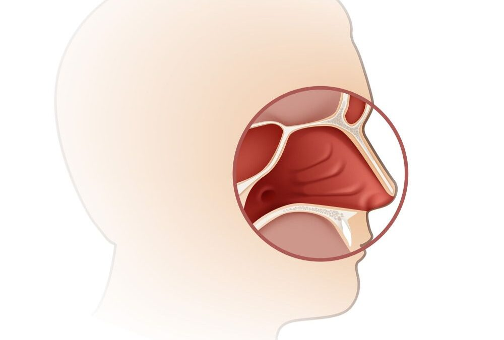 What Are Nasal Cavity and Paranasal Sinus Cancers?